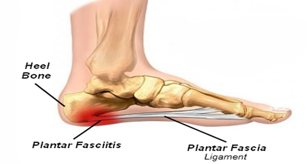 relief from plantar fasciitis- the right shoes can make all the, Skeleton